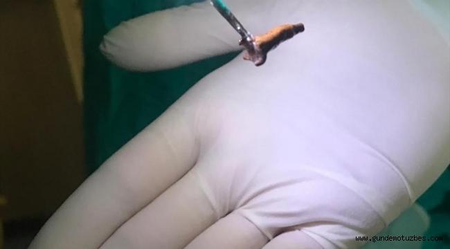 Denizli'de nefes darlığı çeken kişinin akciğerinden karanfil çıktı